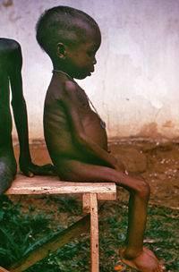 Qué es la desnutrición infantil