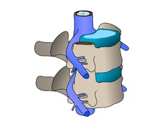 Ejercicios para la hernia discal